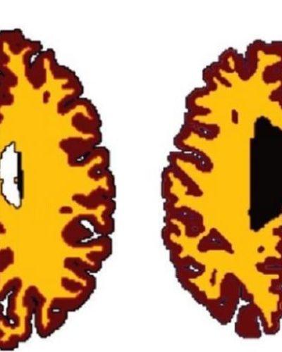 Fazla kilolar beyni yaşlandırıyor