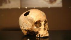 Bulunan delik kafatasının anlamı nedir?