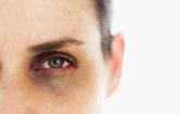 Göz altı morlukları neyin işaretidir?