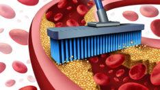 Damar sertliğini önlemede keşfedilmiş yeni bilimsel bulgular