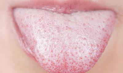 Dil Sararması hastalık belirtisi mi? Dil sararmasının nedenleri nelerdir?