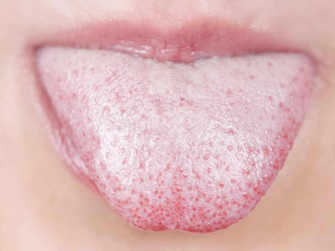 Dil Sararması Nedenleri Nasıl Temizlenir