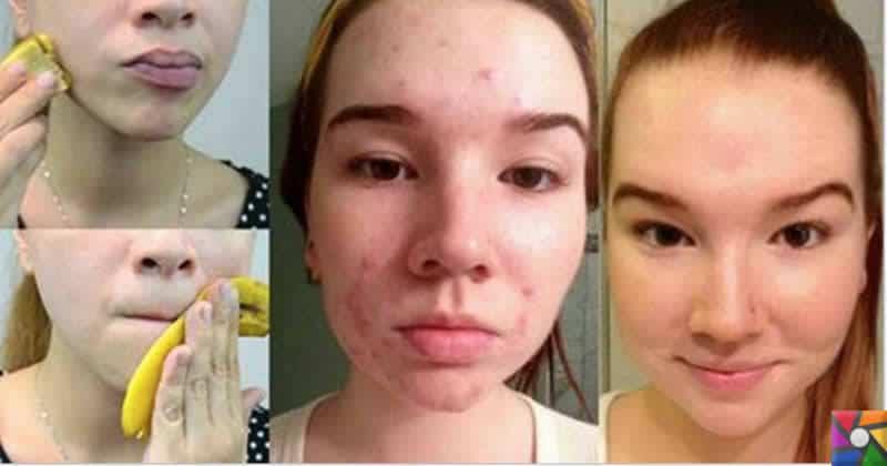 Yüz temizliğine doğal çözüm: Muz kabukları | Sivilce ve Akne için