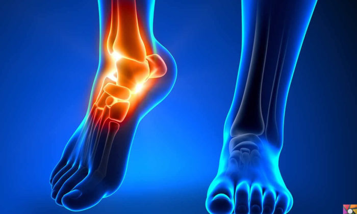 Ayak Bileği ağrısı nedir? Ayak Bileği neden ağrır? Tedavisi nedir?