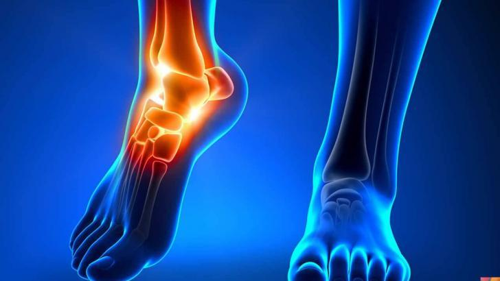 Ayak Bileği ağrısı nedir? | Nedenleri | Tedavisi
