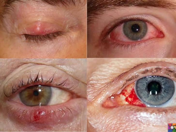 Deri ve Mukoza Yolu ile Bulaşan Hastalıklar Nelerdir? Belirtileri ve Tedavisi | Trahom Göz mukozası hastalığıdır.