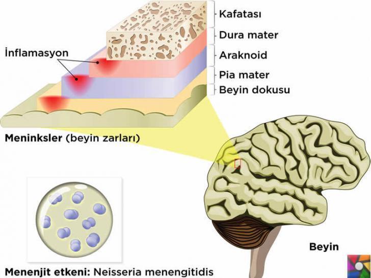 Hava yoluyla insanlara bulaşan hastalıklar nelerdir? Belirtileri ve Tedavisi | Menenjit beyin fonksiyonlarını etkiler.
