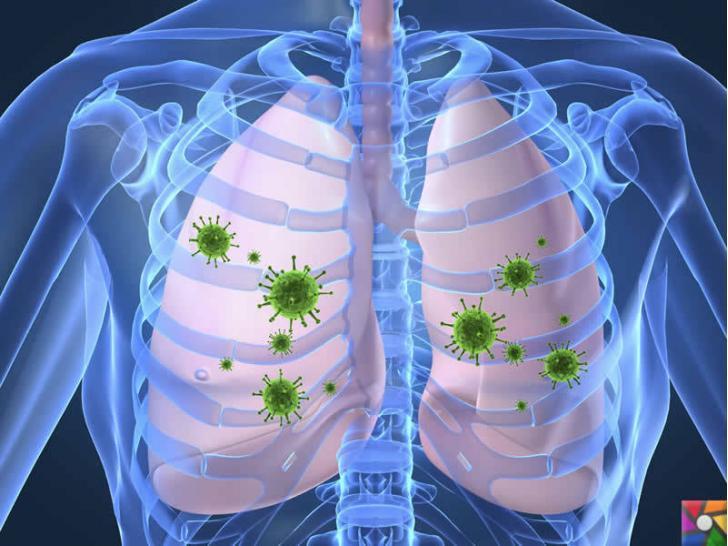 Hava yoluyla insanlara bulaşan hastalıklar nelerdir? Belirtileri ve Tedavisi | Akciğerlere yerleşen verem virüsleri