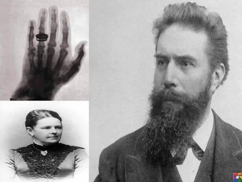 Wilhelm Conrad Röntgen Kimdir? | Eşinin ve ilk defa çekilen röntgen eşinin elinin fotoğrafları