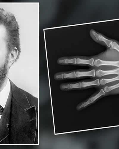 Wilhelm Conrad Röntgen Kimdir? Hayatı ve Biyografisi | Röntgenin Mucidi