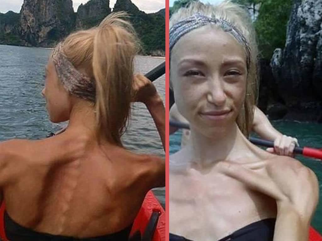 Anoreksiya nedir Anoreksiya belirtileri nelerdir