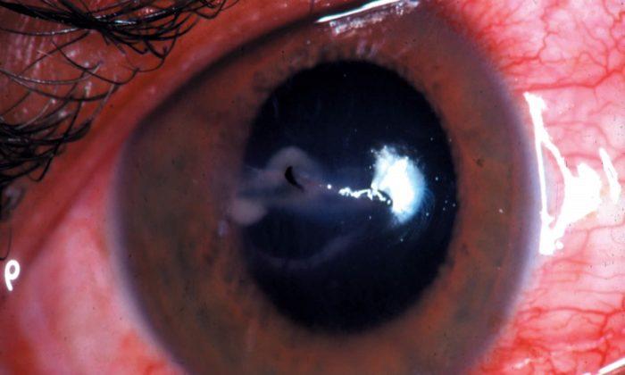 Göz yaralanma çeşitlerine göre ilkyardım nasıl uygulanmalı?
