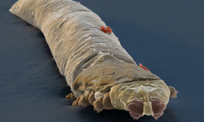 Yüzümüzde bizle beraber yaşayan başka canlılar mı var?
