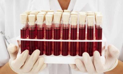 Kan grupları nasıl oluştu? Kan gruplarını kim buldu?