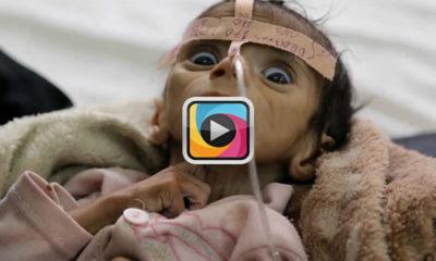 Unicef'in açıkladığı korkunç rakama göre 1,5 milyon çocuk açlıktan ölecek