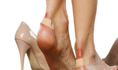 Ayakkabı vurmasına neler yapılabilir? Ayakta su toplamasına ne yapmalı?