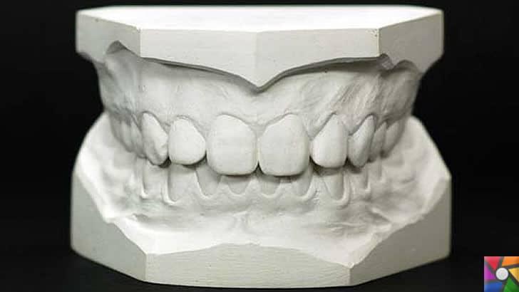 Alçı nedir? Alçı nasıl oluşur? Özellikleri nelerdir? Nerelerde kullanılır? | Diş protezlerinde alçı kullanılır