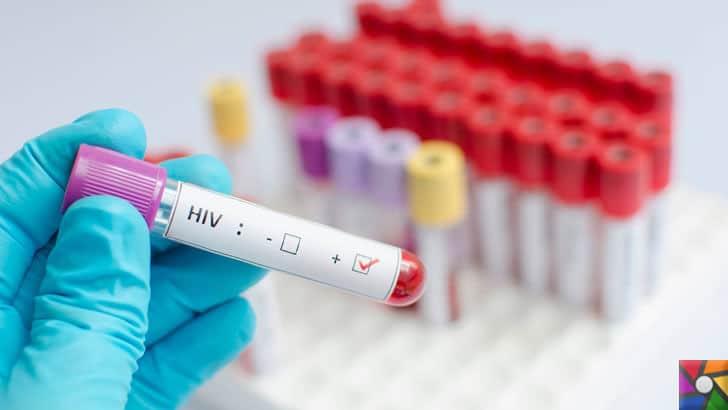 HIV virüsü nedir? HIV virüslü kişi ne kadar yaşar? | Elisa testi ile HIV virüsü anlaşılabilir