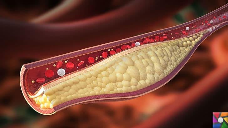 Kalp Krizi en çok Ağrı Kesici alma döneminde gerçekleşiyor! Kalbe giden arterlerde oluşan tıkanma