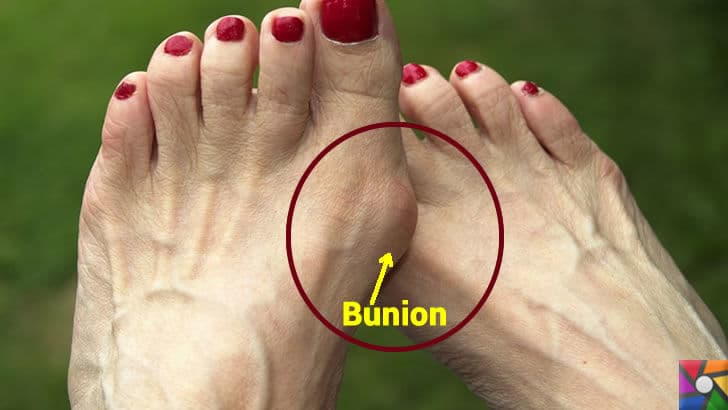 Topuklu Ayakkabılar zararlıdır ama neden vazgeçilmez? | Halluks Valgus ve Bunion yada Bunyon