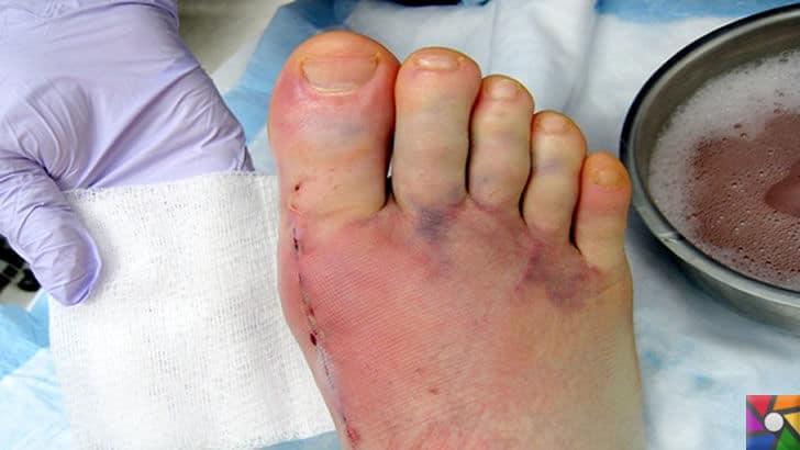 Topuklu Ayakkabılar zararlıdır ama neden vazgeçilmez? | Halluks Valgus ve Bunion yada Bunyon cerrahi müdahale