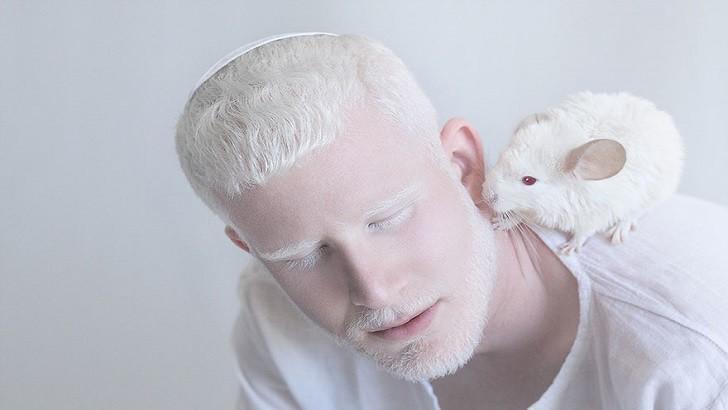 Albino Nedir? Albino Hastalığının Sebepleri Nelerdir?
