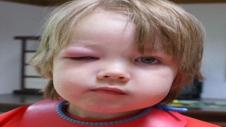 Alerji Nedir? Çeşitli Alerjiler ve Tedavi Yolları Nelerdir? | Göz Alerjisi
