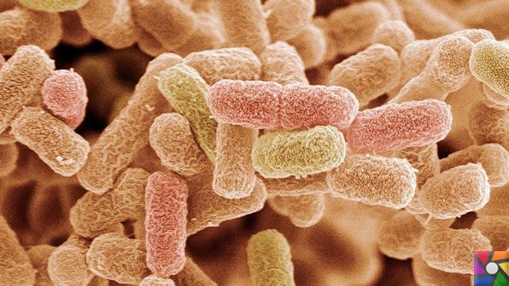 Un Zehirlenmesi nedir? Undan Zehirlenme nasıl anlaşılır? | Koliform Bakterisi