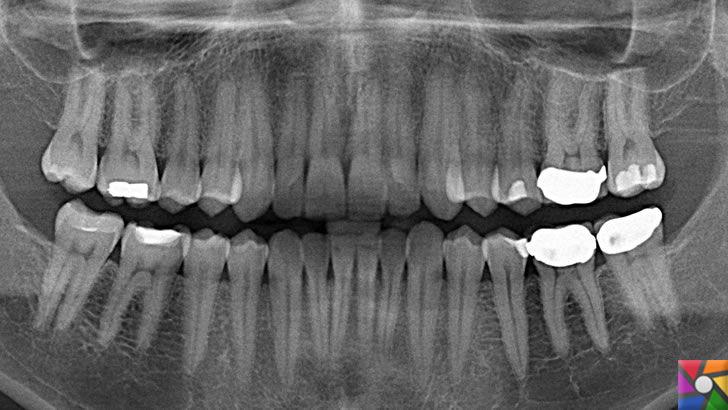 Biyocam nedir? Kırık tedavilerinde cam neden kullanılır? | Dişlerde kullanılan biyomalzemeler