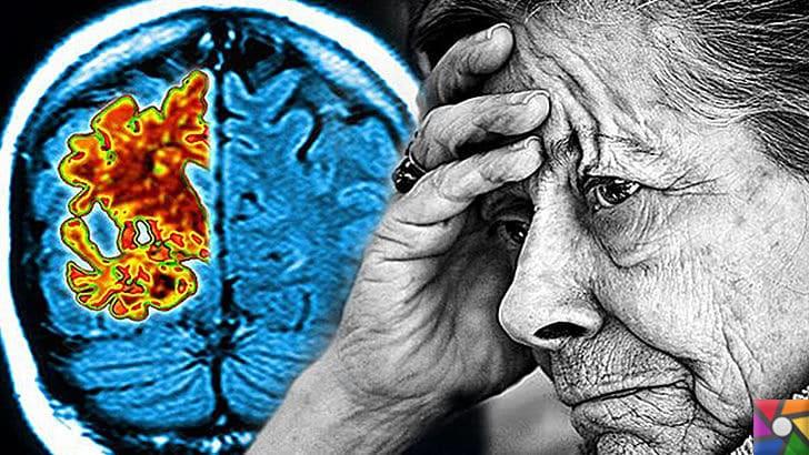 Bunama (Demans) nasıl anlaşılır? Bunamanın aşamaları ve Hasta Bakımı | 80 yaşından sonra her 2 kişiden birinde görülebilir