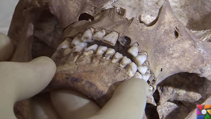Adli Antropoloji nedir? Adli Antropolog kimdir? Adli Antropoloji Süreci | Diş yapılarından bile iskeletin kime ait olduğu bulunabiliyor
