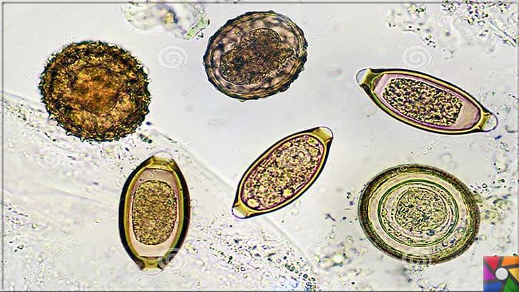 Parazit nedir? Parazitler nasıl oluşur? Parazitlerden Nasıl kurtulabiliriz? | Parazit yumurtaları