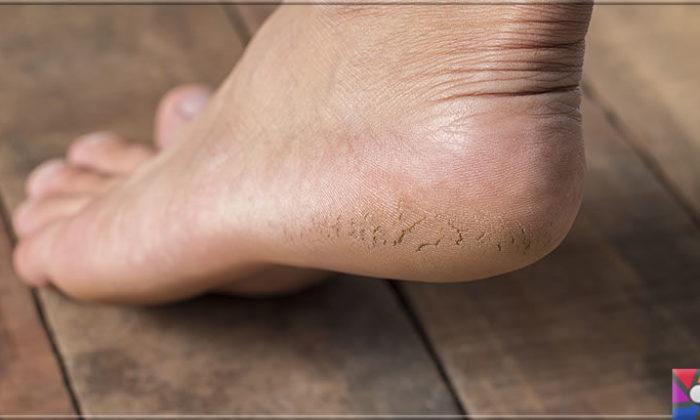 Kuru ve çatlamış ayaklar için evde yapılabilecek kolay ve pratik 20 tarif