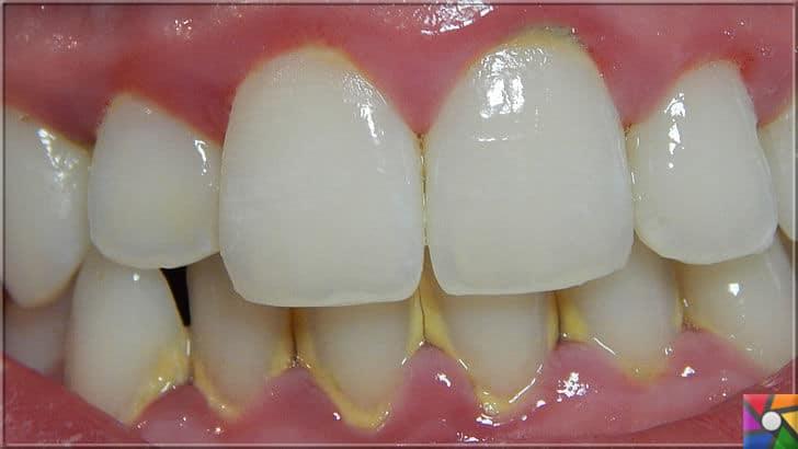 Ağız ve Diş sağlığı için misvak kullanmanın 8 bilimsel nedeni | Diş plakları, tartarları oluşturur. Tartarlar diş ve diş eti hastalıklarının baş nedenlerinden biridir