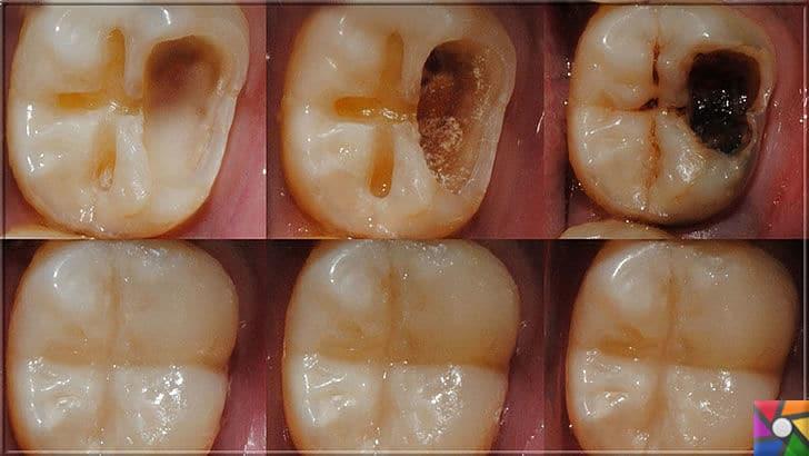 Ağız ve Diş sağlığı için misvak kullanmanın 8 bilimsel nedeni | Diş çürüklerini engellemek için diş plaklarını engellemek gerekir