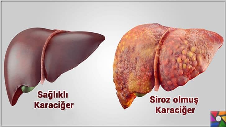 Sağlıklı bir Karaciğer için tüketilmesi gereken en iyi 21 gıda | Karaciğeri bitiren siroz hastalığı sonucu ölümdür