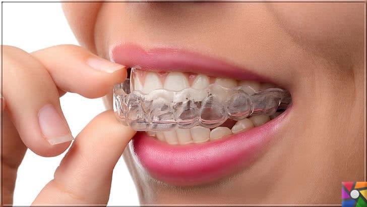 Diş gıcırdatma neden olur? Diş gıcırdatma tedavisi için 8 farklı çözüm | Diş gıcırdatma da zaman kazanmak için en yaygın önlem ağız koruyucu kullanın