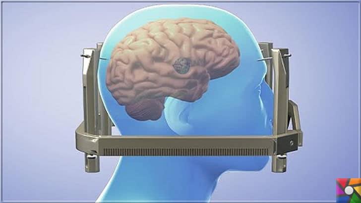 Gamma Knife Nedir? Gamma Knife Neden ve Nasıl Kullanılır? | Gamma Knife cihazına girmeden önce hastaya demir kafes takılır