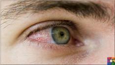 Göz kanlanması neden olur? Göz kanlanmasını gidermenin 21 etkili yolu