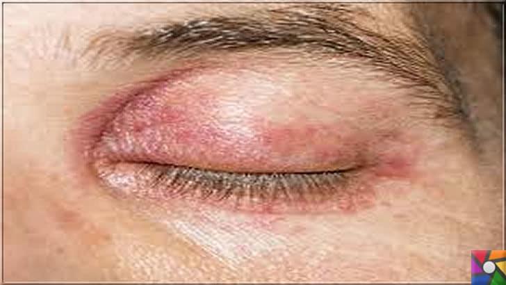 Göz kanlanması neden olur? Göz kanlanmasını gidermenin 21 etkili yolu | Alerjiler göz kapaklarındaki ve gözün etrafındaki kızarıklıklarla anlaşılabilir
