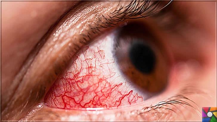 Göz kanlanması neden olur? Göz kanlanmasını gidermenin 21 etkili yolu | Göz kanlanması ciddi bir hastalık habercisi olabilir. Bu yüzden tıbbi destek almalısınız