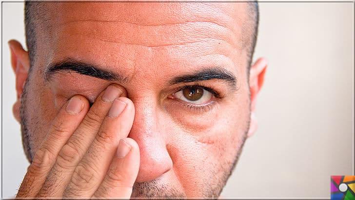 Göz kanlanması neden olur? Göz kanlanmasını gidermenin 21 etkili yolu | Gözlerde kaşınma olduğunda gözlerini ellerinizle ovmayın, onun yerine soğuk suyla yıkayıp, temiz bir havlu kağıdı ile bastırmadan kurutun