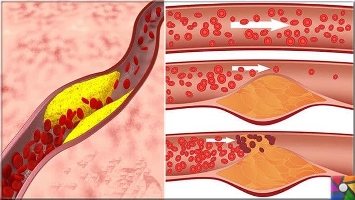 Damar Tıkanıklığı nedir, nasıl oluşur? Damar Tıkanıklığı nasıl tedavi edilir? | Damarların içindeki birikme zamanla kan dolaşımını engelliyor