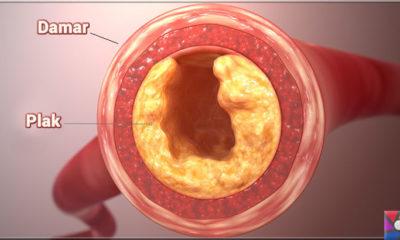 Damar Tıkanıklığı nedir, nasıl oluşur? Damar Tıkanıklığı nasıl tedavi edilir?