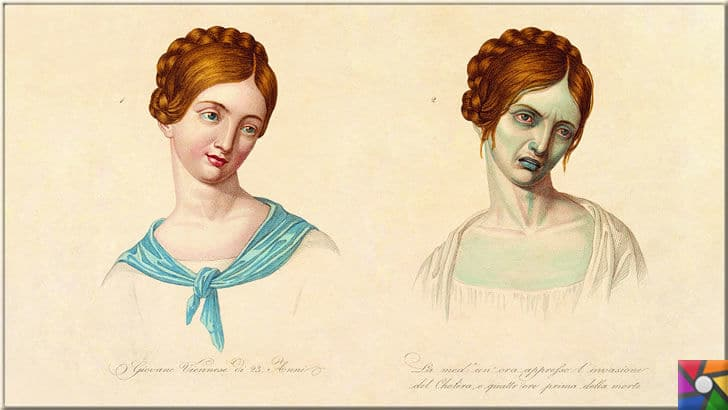 İlk hastalık ne zaman ortaya çıktı? Salgın hastalıklar nasıl oluştu? | Yirmi üç yaşındaki Venedikli bir kadın koleraya yakalanmadan önce ve sonra resmedilmiş. Gravür, anonim, 1831