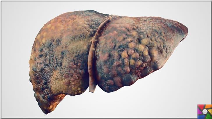 Az da olsa günlük alınan alkollü içkinin insan sağlığına hiç bir yararı yok! | Kalp damarlarını korumak gibi asılsız iddiaları olan Alkol tüketimi, karaciğer hastalıklarından biri olan sirozun karaciğeri dıştan içeri doğru bitirişi