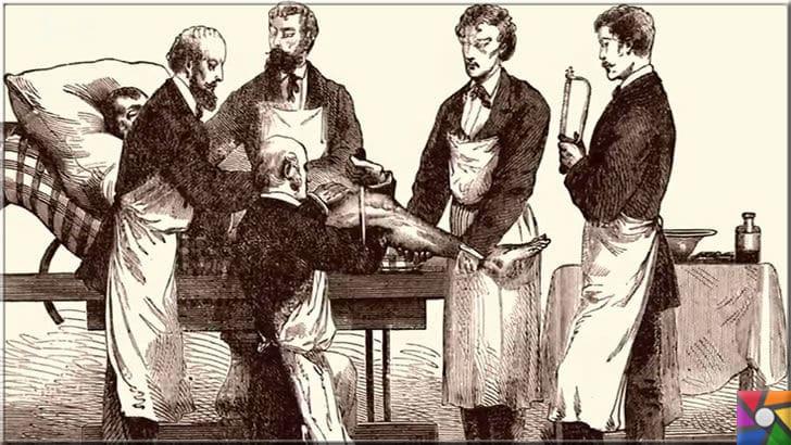 Modern cerrahinin babası Joseph Lister kimdir? Hayatı ve Buluşları | İyileşmeyen yaralar mikrop kapıp kangrene çeviriyordu ve ardından ampüte işlemleri yapılıyordu. Lister yeni bir sayfa açana dek hep böyle oluyordu