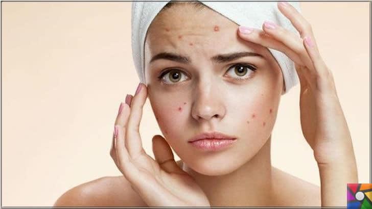 Akne oluşumunu ve kötüleşmesini önlemek için uzmanından 8 öneri | Akne kadınlarda her dönemde görülebilir