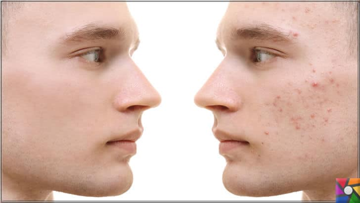 Akne oluşumunu ve kötüleşmesini önlemek için uzmanından 8 öneri | Akne sadece kadınlar için değil ergenlik döneminde erkeklerin bir çoğunda görülür
