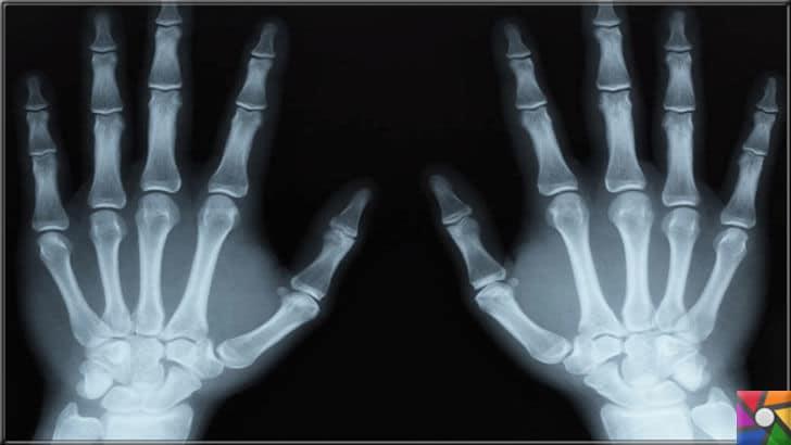 X ışını nedir? X ışınlarının özellikleri nelerdir? Tıpta nerelerde kullanılır? | X ışınları Tıpta yeni bir gelişim evrimi yarattı
